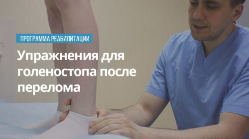 Упражнения для голеностопа после перелома