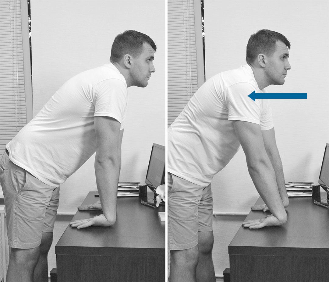 Как разрабатывать руку после перелома лучевой кости локтевого сустава