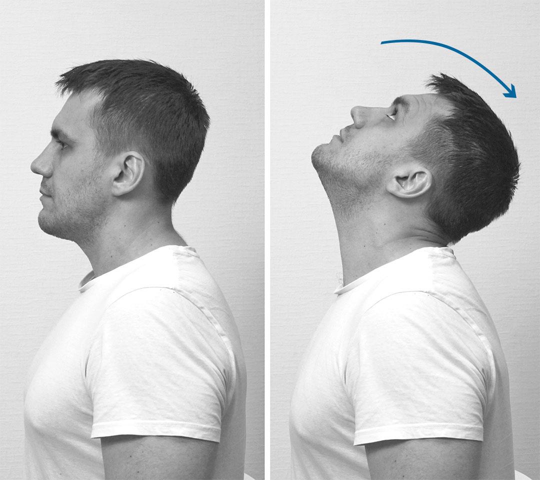 Активное разгибание шеи