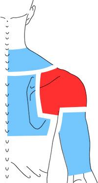 Упражнения при болях по задней поверхности плеча