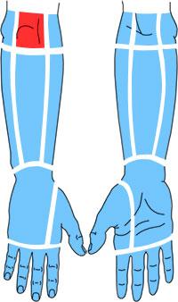 Упражнения при болях в области локтевого отростка локтевой кости