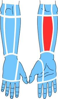 Упражнения при болях по ладонной поверхности предплечья