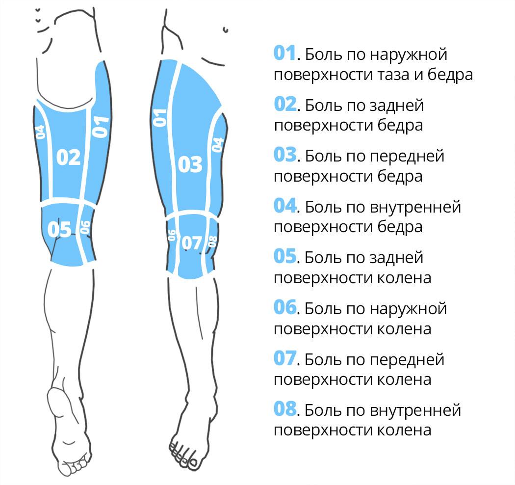 Карта боли по поверхности таза, бедра, колена