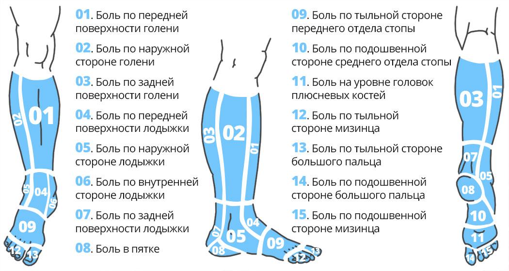 Карта боли в области голени, лодыжки и стопы