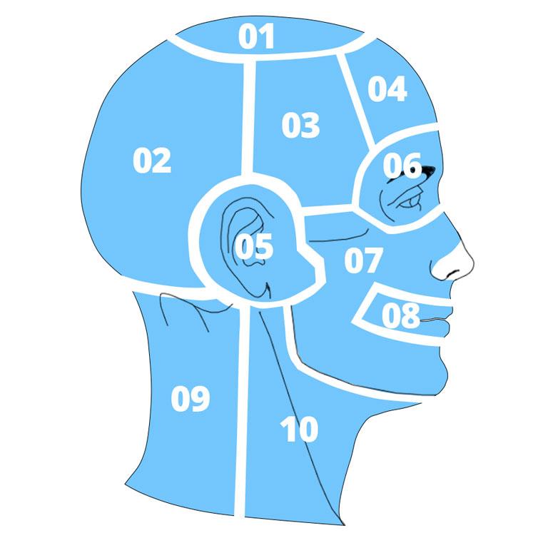 Карта головных болей напряжения